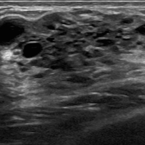 intraductal papilloma adolescent