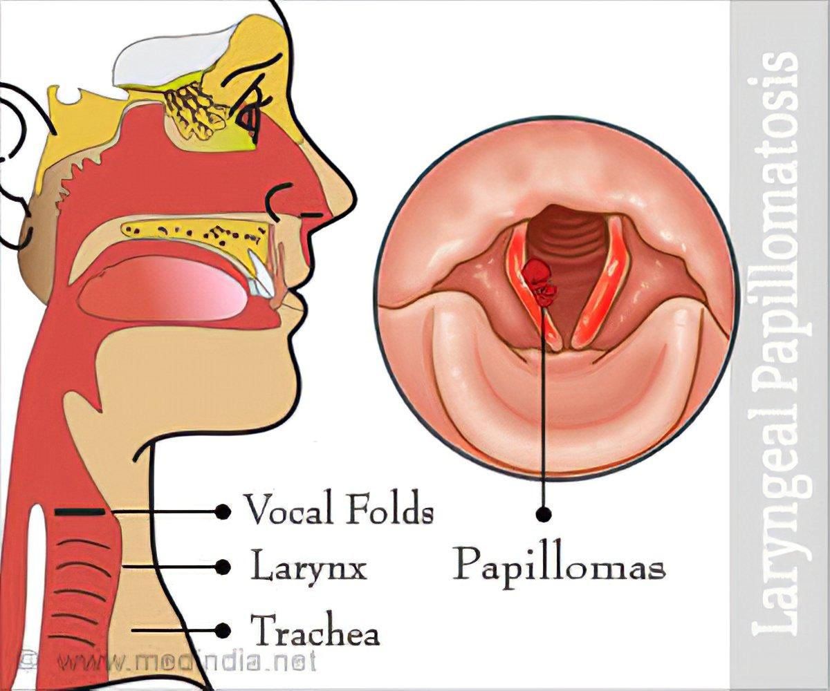 Respiratory papillomatosis medical treatment. Încărcat de