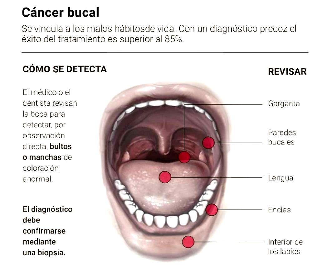 cancer bucal como detectarlo