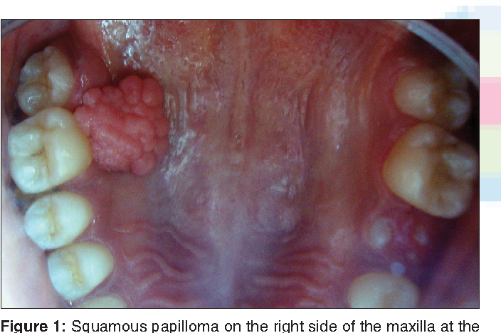 squamous cell papilloma nhs
