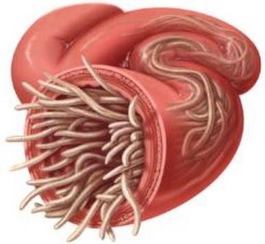 parasito de oxiuros resultados de papanicolaou anormal