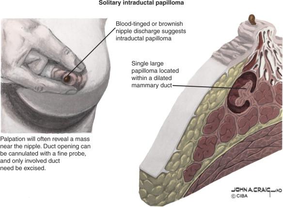 intraductal papilloma lesion anemia o que e