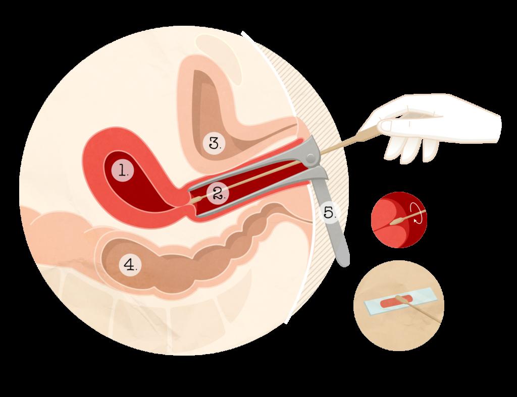 frottis lesion papillomavirus
