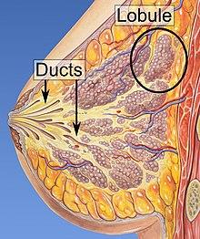 Atlas of Breast Pathology - transroute.ro, Papillomatosis of duct