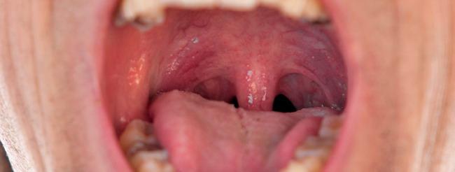 virus papiloma en la boca