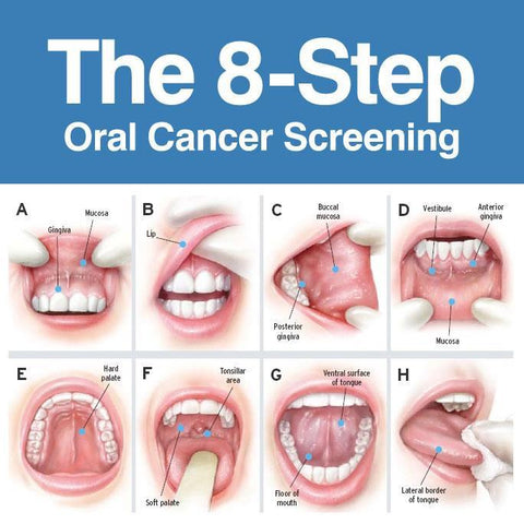 Hpv virus on mouth - Papillomas are typically spread through direct contact infected humans or