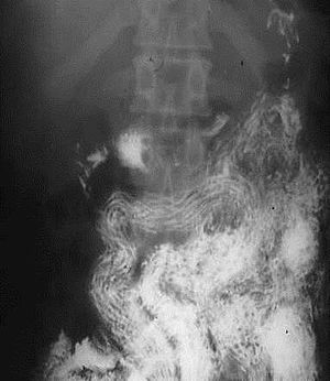 helminthiasis helminth infection tratament pentru viermisori- oxiuri