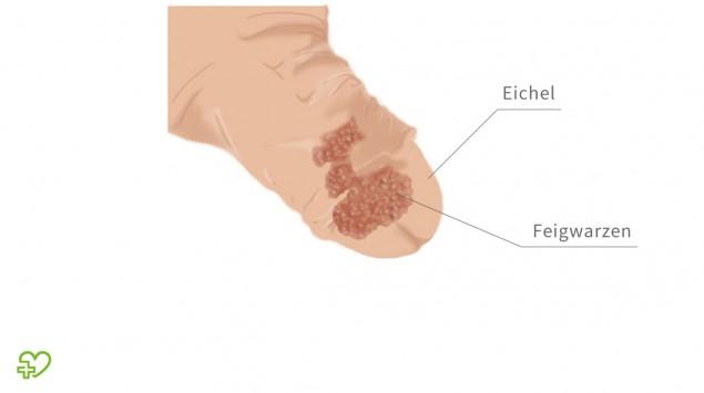 Hpv virus warzen, Virus papiloma humano latencia