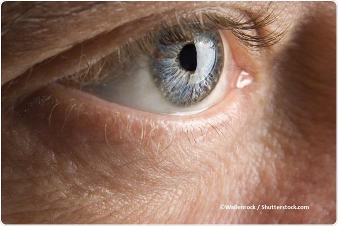 papilloma occhio cause