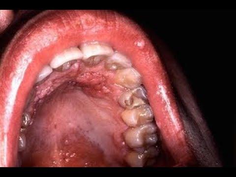 Sintomas de cancer na garganta por hpv