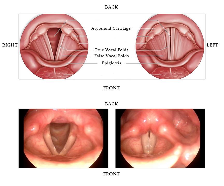 hpv throat nodules