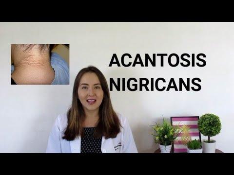 que es papilomatosis acantosis