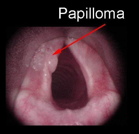 hpv larynx symptomes