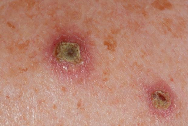 Human papillomavirus rash description. Infecţia cu HIV la femei