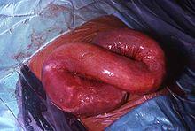 helminthic infestation definition