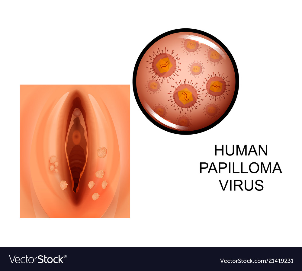 Human papillomavirus symptoms in females. hhh | Cervical Cancer | Oral Sex