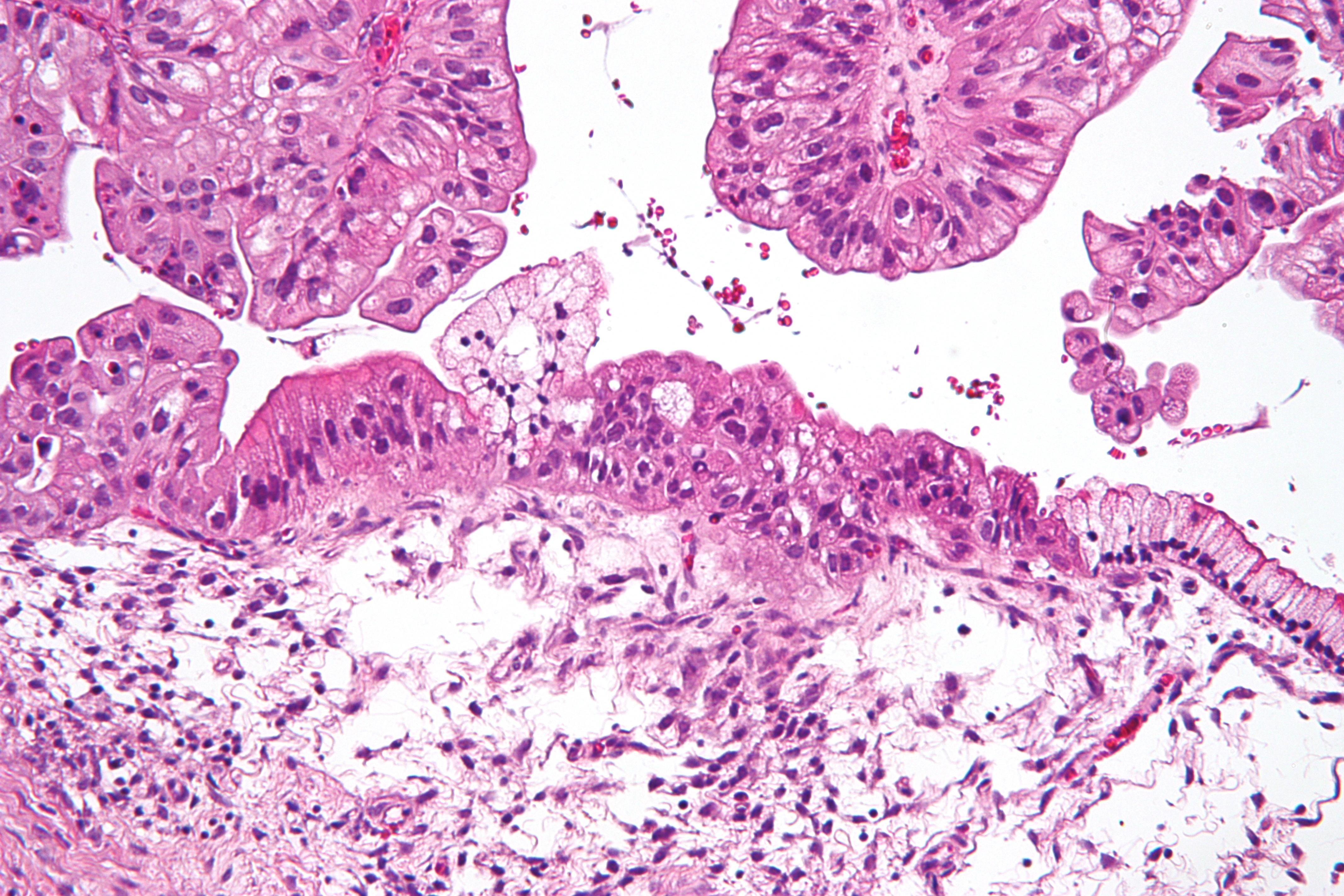 Cancerul ovarian - mereu în actualitate