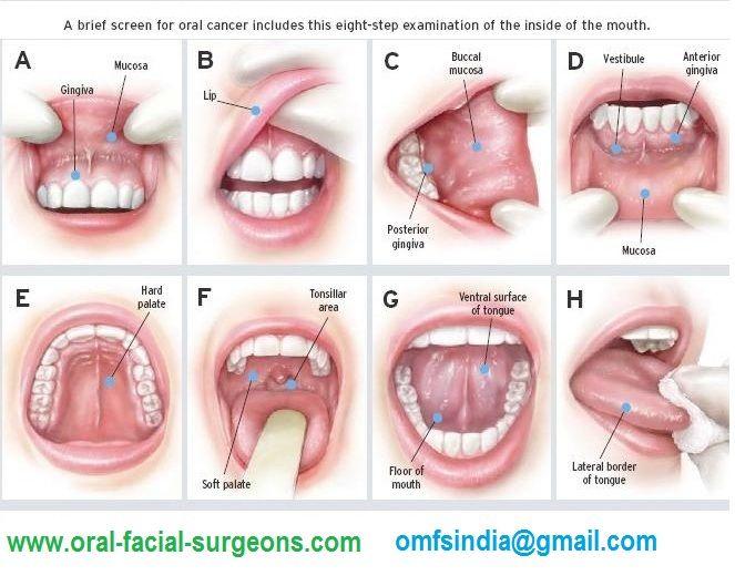 cancer bucal gingivitis