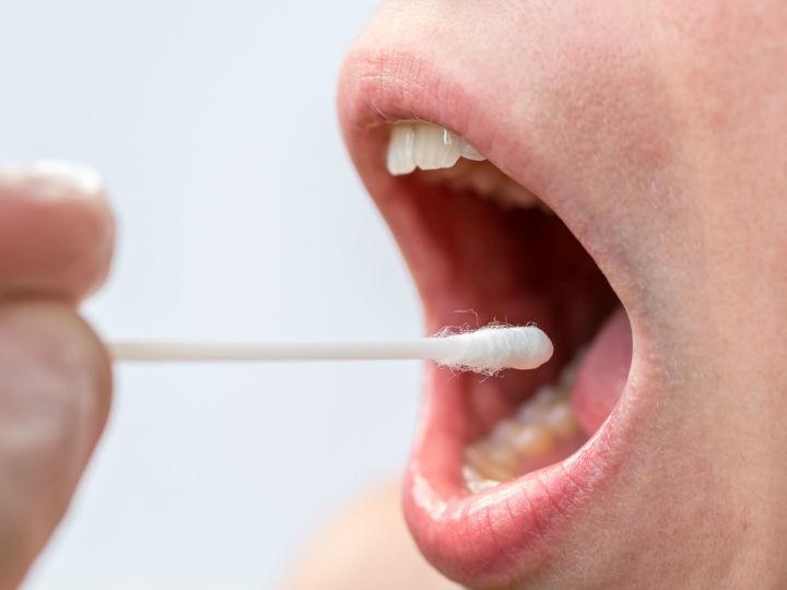 vph en la boca primeros sintomas papilloma invertito seno mascellare