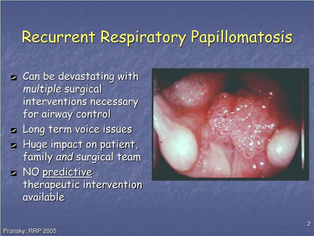laryngeal papilloma ppt