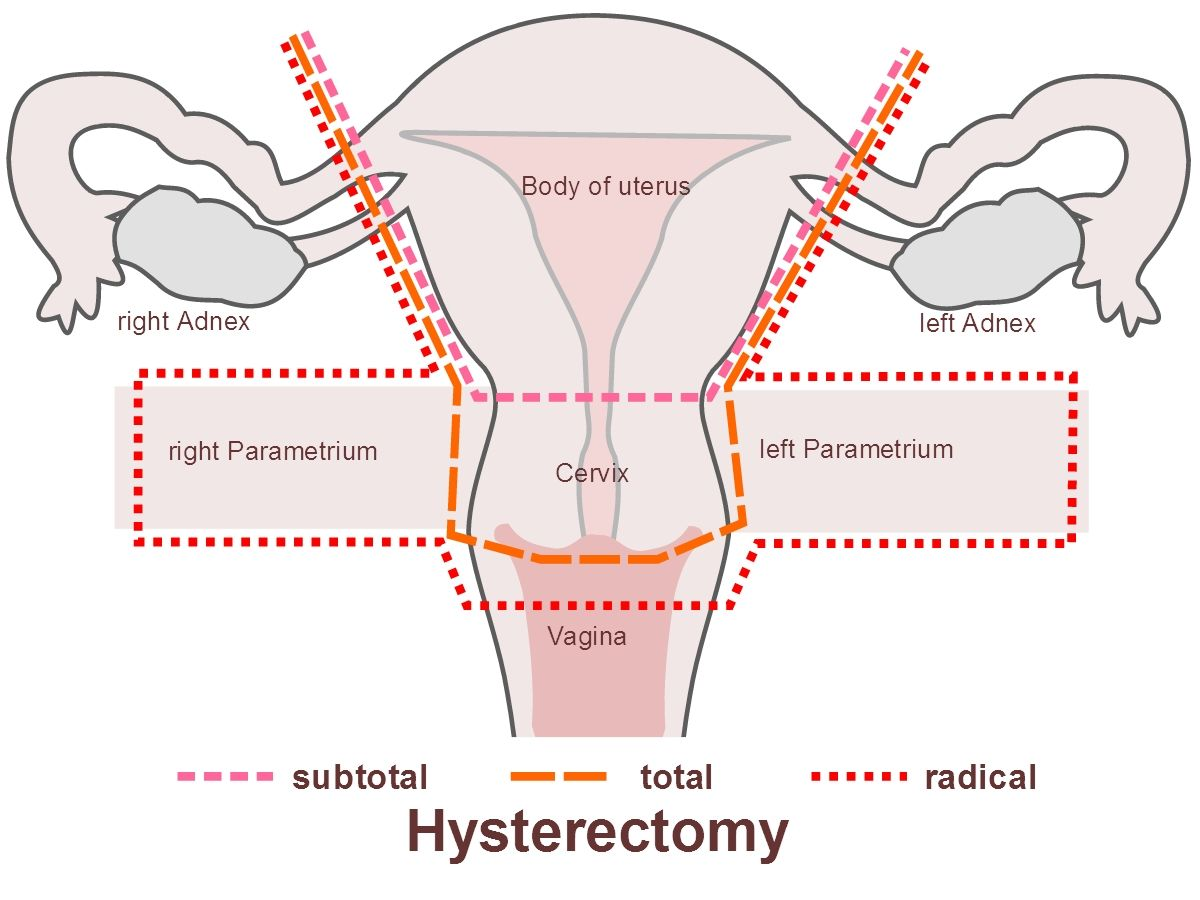 ovarian cancer hysterectomy
