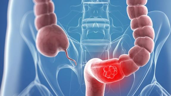 Cancer de colon por hpv Cancer esofagian operatie