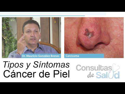 papiloma cancer de piel