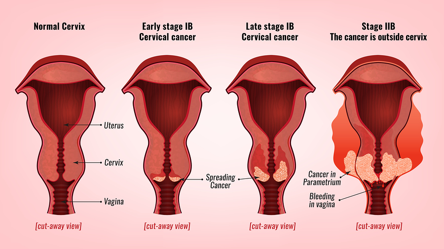 hpv and endometrial cancer anthelmintic nedir