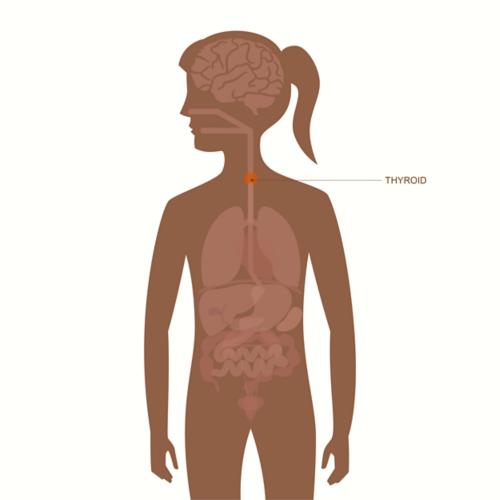 cancer hodgkin hereditaire oxyuris equi nematoda