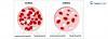 anemia z niedoboru zelaza