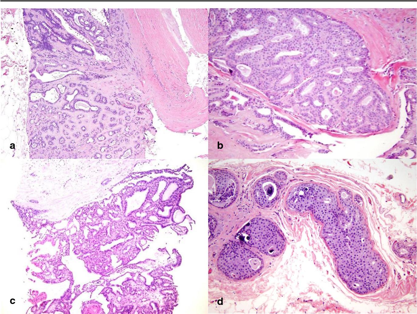 Rezultate bacalaureat dupa nume, Papiloma fibroepitelial benigno