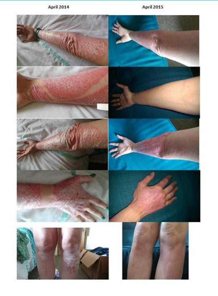 neoplasia papilloma virus preparate pentru viermi umani