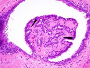 intraductal papilloma histopathology virus papiloma en la boca