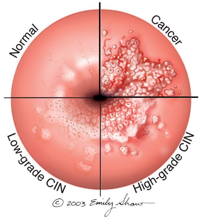 hpv virus and normal pap tenia de pește este infecțioasă