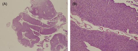 Papillary urothelial neoplasm tumors