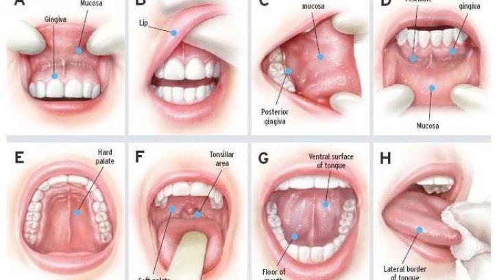 Cancerul oral: ce este, cum se depistează, cum se tratează