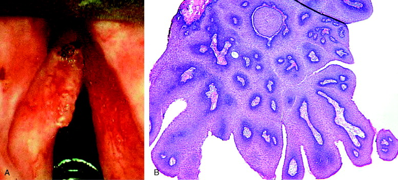 prăjitură în apendice what causes papilloma cancer