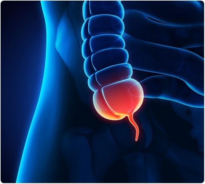 peritoneal cancer appendix