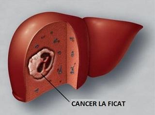 Cancerul hepatic (Carcinomul hepatocelular) – transroute.ro
