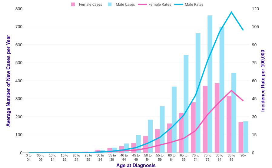pancreatic cancer age of onset paraziți și medicamente pentru ei
