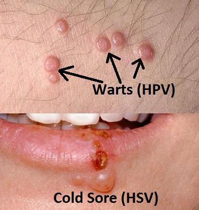 hpv warzen aussehen giardie și panou antigen cryptosporidium