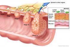 Cea mai eficienta cura de detoxifiere / Dacia Plant - Blogul despre sanatate naturala