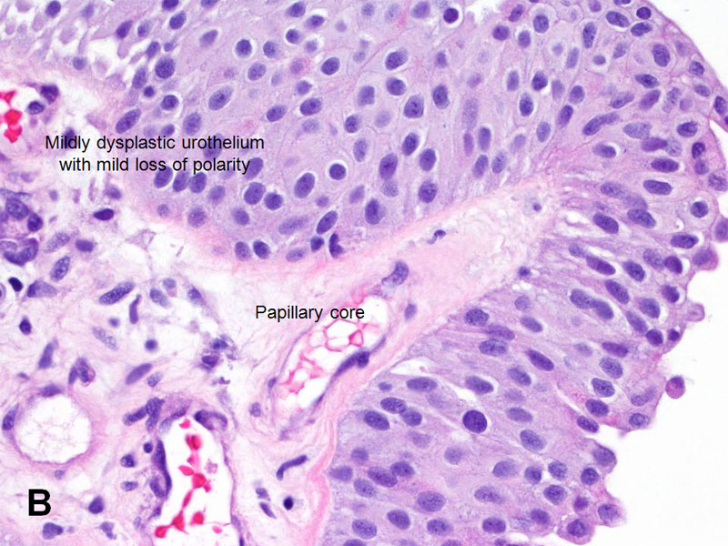 papillary urothelial survival rate