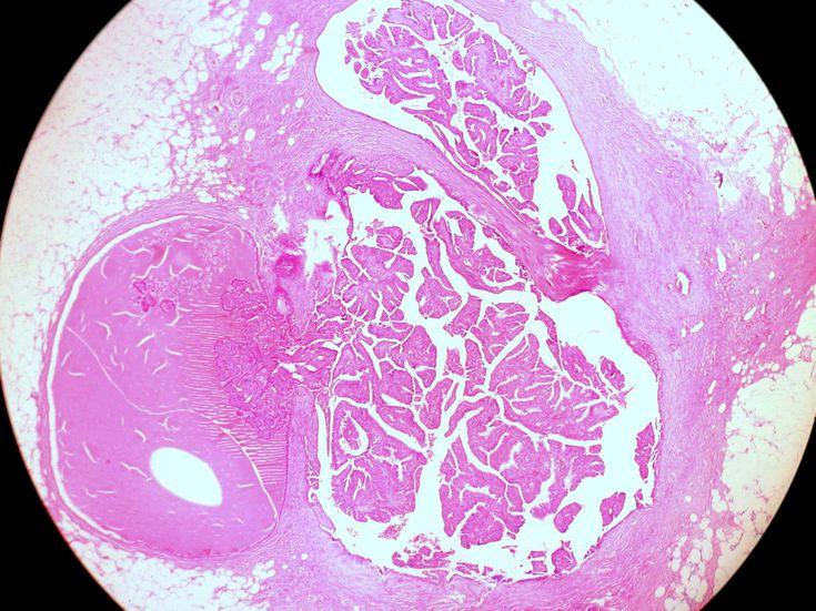 natural treatments for intraductal papilloma cel mai bun tratament oxiuri