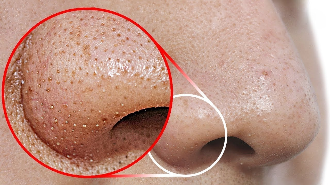 papilloma uvula treatment