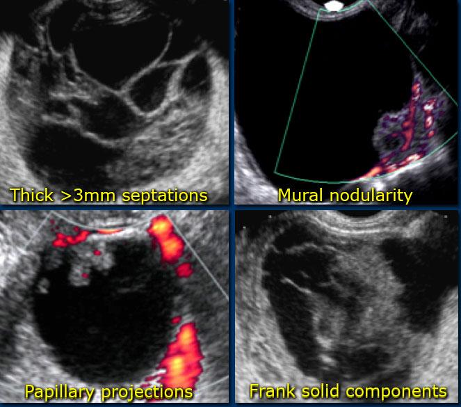 cancer ovarian lesions tratamente pentru adulți pentru viermi