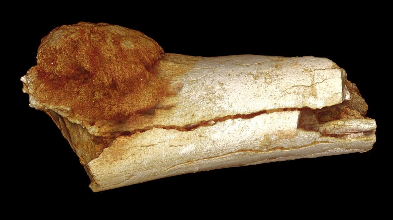 Que es cancer de huesos, Papillomavirus humain bilan biologique