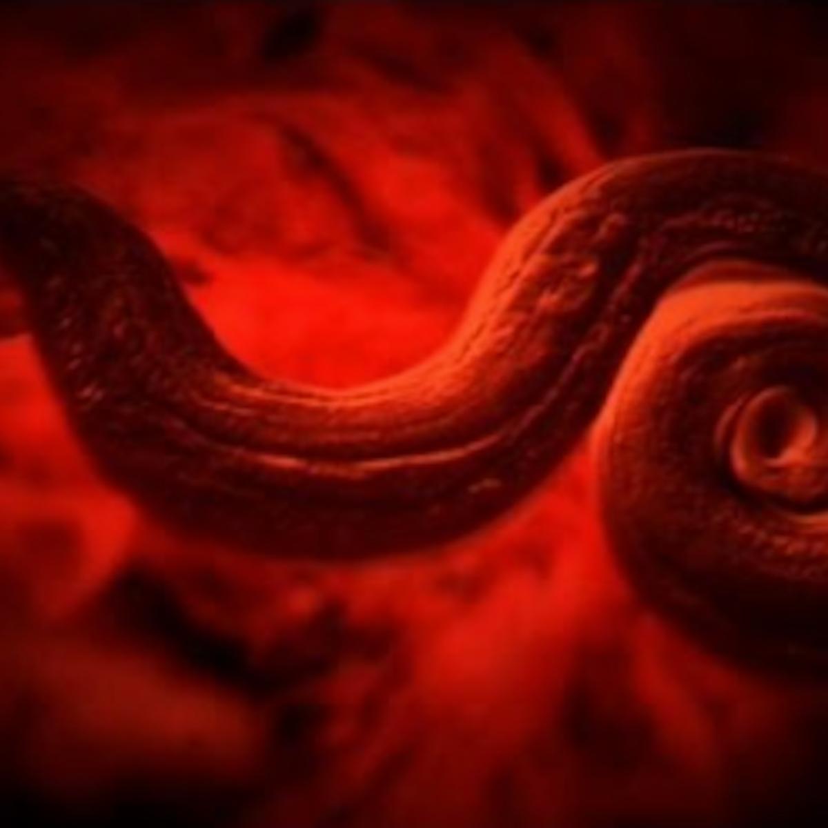 se vindeca cancerul de col viermi cu săpun