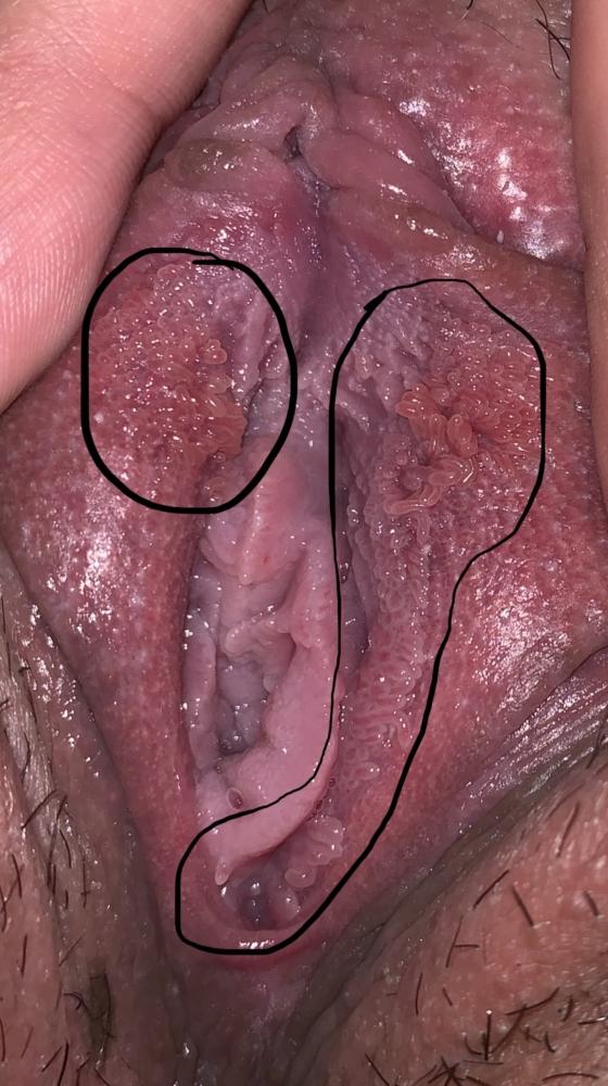 vestibular papillomatosis stinging