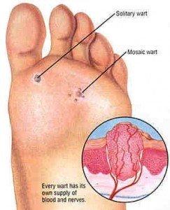 verruca under foot treatment se ia cancerul de piele